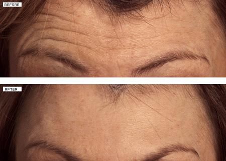 Botox de plis du front
